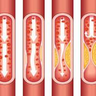Vere kõrge kolesteroolitase on sagedane terviseprobleem, mis tekitab küsimusi ja paneb muretsema. Samas kaasneb kolesterooliga ka palju segadust ja valestimõistmisi, mistõttu on teemat ikka ja jälle mõtet põhjalikumalt käsitleda. Kolesterool on meie organismile ülivajalik aine, ca 75-80% sellest sünteesib keha oma igapäevasteks vajadusteks ise. Kolesterool on steroidhormoonide ja ka immuuntasakaaluks nii olulise D-vitamiini eelaineks. Meelde […]